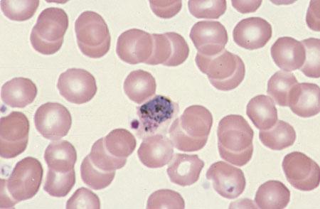 تروفازوئید پلاسمدیوم ویواکس در داخل گلبول